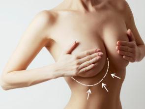 Breast Enlargement through Implants