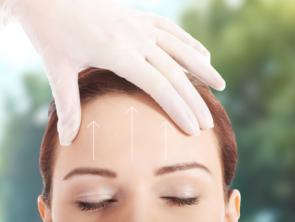 Forehead Lift